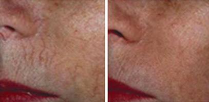 Fairlawn Aesthetic MD IPL Photo Skin Rejuvenation treatment