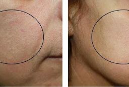 OxyGeneo+ Facials at Fairlawn Aesthetic MD