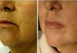 Fairlawn Aesthetic MD skin texture Fractional C02 Resurfacing treatment