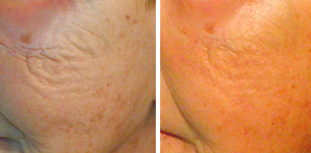 Fairlawn Aesthetic MD radiofrequency microneedling skin treatment at Cleveland Aesthetic Practice