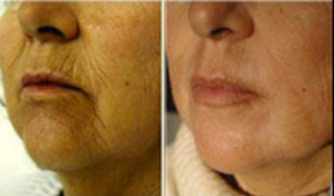 Fairlawn Aesthetic MD skin texture Fractional C02 Resurfacing treatment