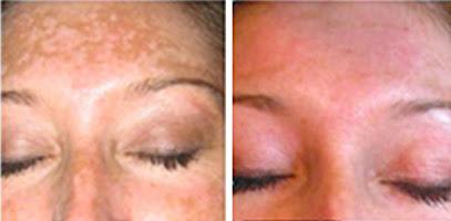 Fairlawn Aesthetic MD skin smoothing IPL Photo Rejuvenation treatment