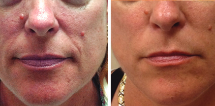 RF Microneedling skin treatment at Fairlawn Aesthetic MD