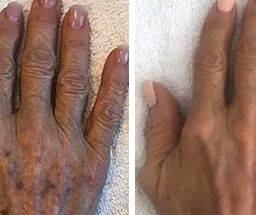 IPL Photo Rejuvination skin treatment at Fairlawn Aesthetic MD