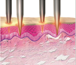 Radiofrequency Microneedling skin treatment