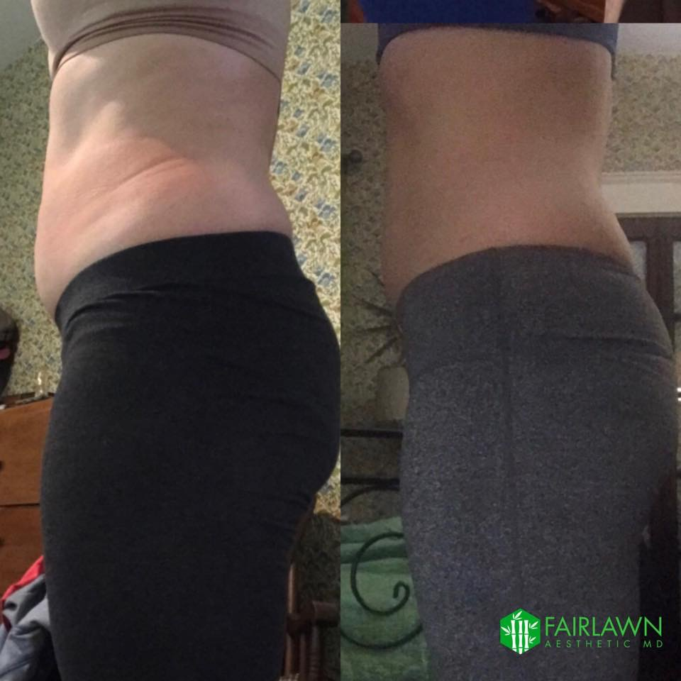 Fairlawn Aesthetic MD fat loss and cellulite cryo-t skin treatment