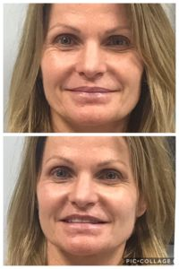 Fairlawn Aesthetic MD botox skin treatment