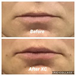 Botox skin treatment at Fairlawn Aesthetic MD