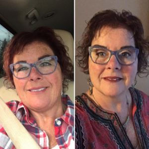 Fairlawn Aesthetic MD skin tone laser treatment