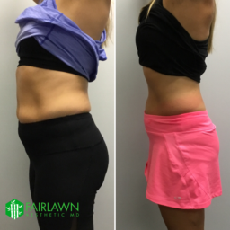 Fairlawn Aesthetic MD, Cryo-T shock cellulite treatment