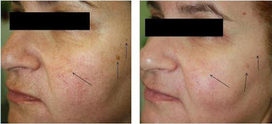 skin treatment at Fairlawn Aesthetic MD for rejuvenated skin