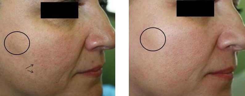 OxyGeneo+ Facial skin treatment at Fairlawn Aesthetic MD