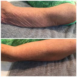 cryo-t shock arm skin treatment for fat loss and cellulite Fairlawn Aesthetic MD