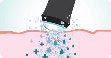 OxyGeneo skin treatment procedure