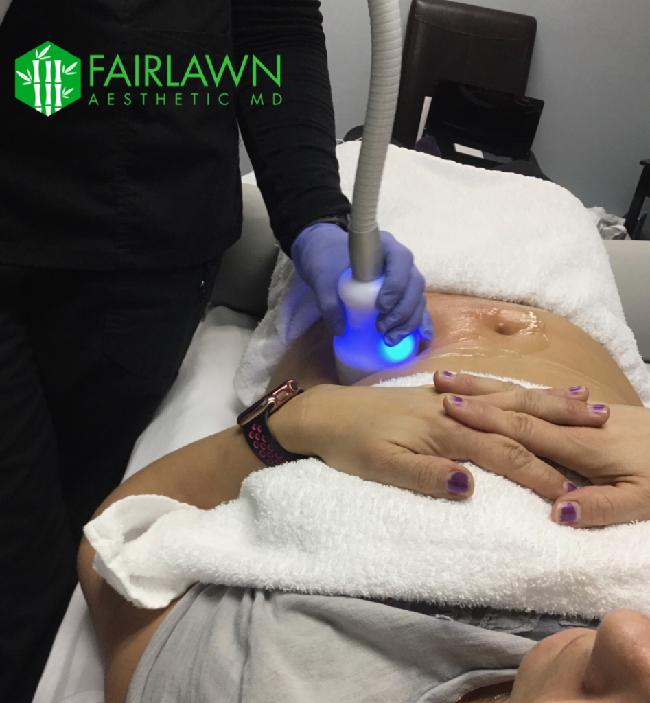 Cryo-T Fat Loss and Cellulite Skin Treatment from Fairlawn Aesthetic