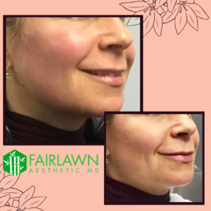 Fairlawn Aesthetic MD skin tone treatment