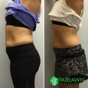 Fairlawn Aesthetic MD, cryo-t cellulite and fat loss treatment