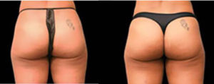 fat loss body sculpting near cleveland ohio with Emsculpt
