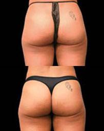 fat loss body sculpting near akron ohio with Emsculpt