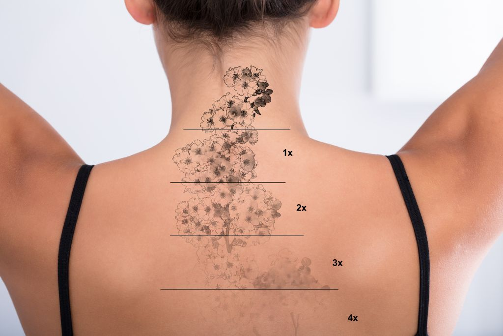 Tattoo Removal Cleveland Mansfield - Fairlawn Aesthetic